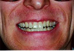 Type I teeth